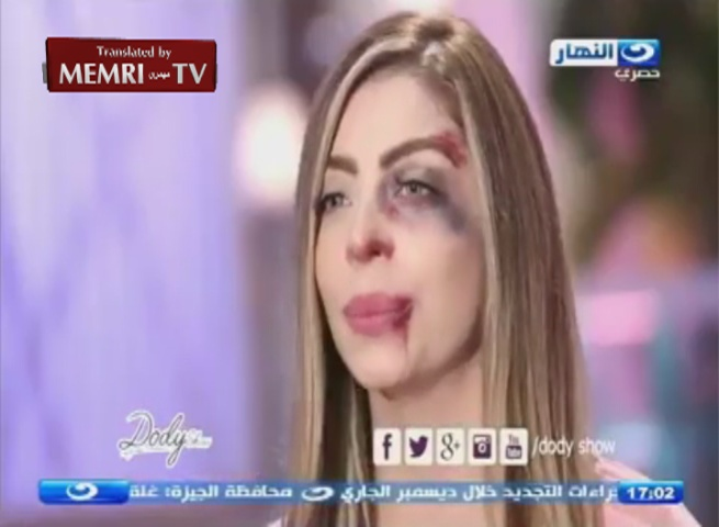 "Egyptian TV Host Duaa Salah Appears with ""Battered"" Face to Protest Violence against Women"